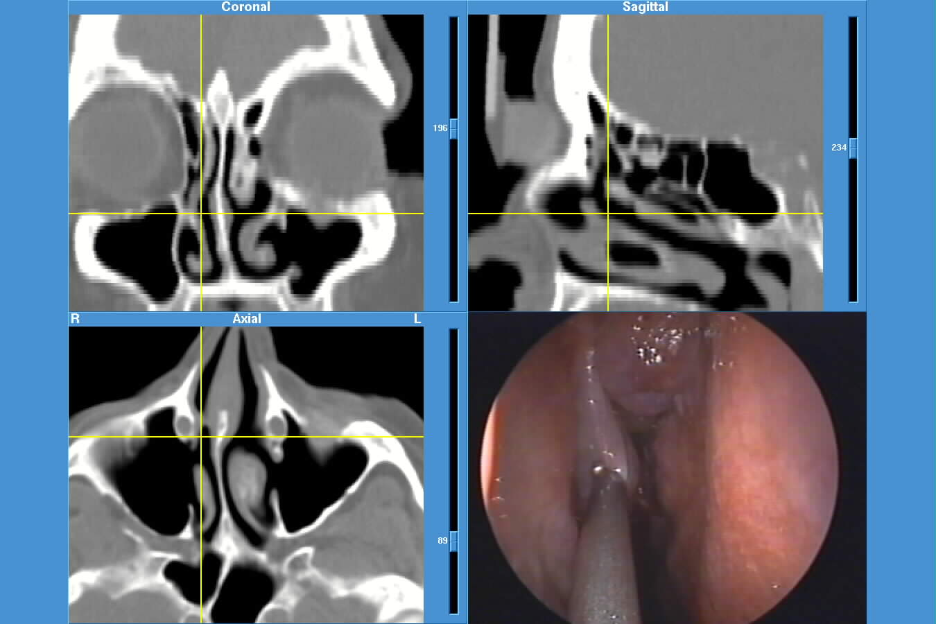 JPEG image of Instatrak surgery
